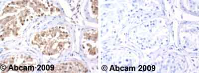 Immunohistochemistry (Formalin/PFA-fixed paraffin-embedded sections)-Hsc70 antibody(ab1427)