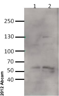 Western blot - Anti-HDAC4 antibody - ChIP Grade (ab1437)