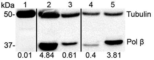 Western blot - Anti-DNA Polymerase beta antibody [61] (ab1831)