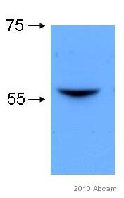 Western blot - Lyn antibody [LYN-01] (ab1890)