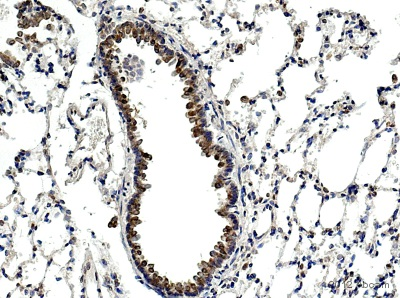 Immunohistochemistry (Formalin/PFA-fixed paraffin-embedded sections) - Anti-Lactoferrin antibody [2B8] (ab10110)