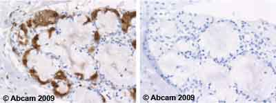 Immunohistochemistry (Formalin/PFA-fixed paraffin-embedded sections) - Lactoferrin antibody [2B8] (ab10110)