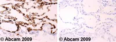 Immunohistochemistry (Formalin/PFA-fixed paraffin-embedded sections)-MUC1 antibody [M4H2](ab10120)