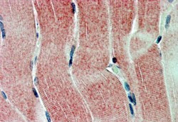 Immunohistochemistry (Formalin/PFA-fixed paraffin-embedded sections) - SIRT4 antibody (ab10140)