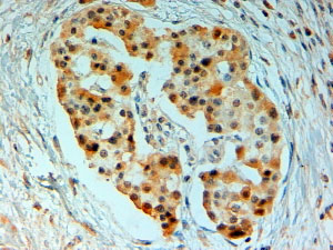 Immunohistochemistry (Formalin/PFA-fixed paraffin-embedded sections) - Anti-SIRT4 antibody (ab10140)