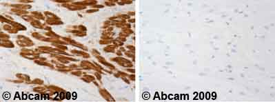 Immunohistochemistry (Formalin/PFA-fixed paraffin-embedded sections)-Cardiac Troponin T antibody [1A11](ab10213)