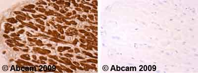 Immunohistochemistry (Formalin/PFA-fixed paraffin-embedded sections)-Cardiac Troponin T antibody [7G7](ab10223)