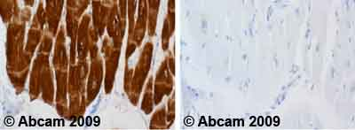 Immunohistochemistry (Formalin/PFA-fixed paraffin-embedded sections) - Cardiac Troponin I antibody [4C2] (ab10231)