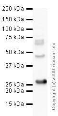 Western blot - PGP9.5 antibody - Neuronal Marker (ab10404)