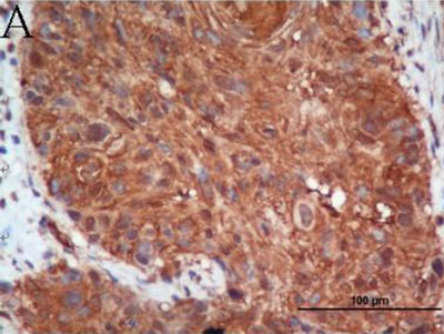 Immunohistochemistry (Formalin/PFA-fixed paraffin-embedded sections) - Anti-BNIP3 antibody [ANa40] (ab10433)