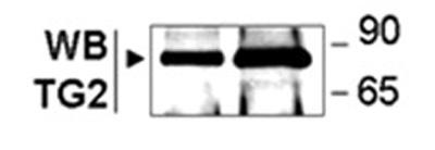Western blot - Anti-Transglutaminase 2 antibody (ab10445)