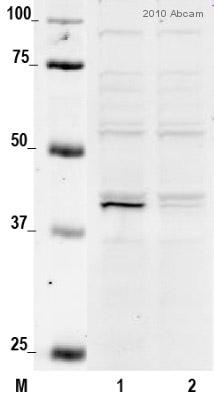Western blot - CKII alpha antibody (ab10466)