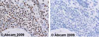 Immunohistochemistry (Formalin/PFA-fixed paraffin-embedded sections)-KAP1 antibody(ab10484)