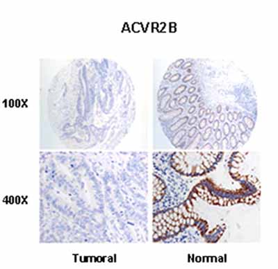 Immunohistochemistry (Formalin/PFA-fixed paraffin-embedded sections) - Anti-Activin Receptor Type IIB antibody (ab10596)