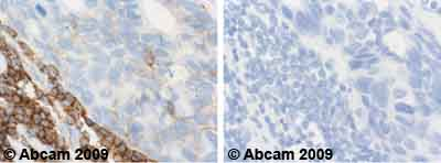Immunohistochemistry (Formalin/PFA-fixed paraffin-embedded sections) - ICAM3 antibody [ICAM3.1] (ab10804)