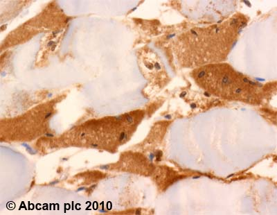 Immunohistochemistry (Formalin/PFA-fixed paraffin-embedded sections)-UCP3 antibody(ab10985)