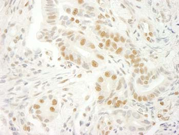 Immunohistochemistry (Formalin/PFA-fixed paraffin-embedded sections) - U2AF35 antibody (ab100805)