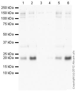 Western blot - Anti-Cofilin (phospho S3) antibody (ab100836)