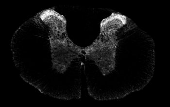Immunocytochemistry/ Immunofluorescence - Somatostatin Receptor 1 antibody (ab100881)