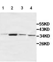 Western blot - ACBD4 antibody (ab100922)