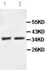 Western blot - OPCML antibody (ab100923)
