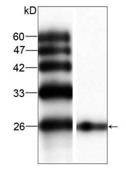 Western blot - Anti-Bcl-2 antibody (ab100949)