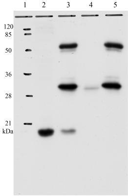 Immunoprecipitation - HPV11 E7 antibody [9H5] (ab100967)