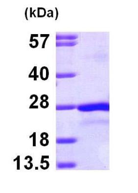 SDS-PAGE - PTP4A2 protein (Tagged-His Tag) (ab100985)