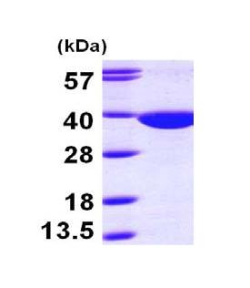 SDS-PAGE - QPRT protein (Tagged-His Tag) (ab100986)