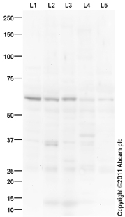 Western blot - Anti-Collagen VIII alpha 1 antibody (ab100988)