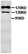 Western blot - Anti-PARP14 antibody (ab101010)
