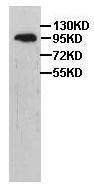 Western blot - ZC3H12C antibody (ab101022)