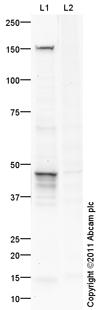 Western blot - Anti-Sulfatase 2 antibody (ab101057)