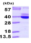 SDS-PAGE - PDXK.1 protein (ab101103)