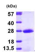 SDS-PAGE - PMVK protein (ab101170)