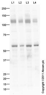 Western blot - KCNH1 antibody (ab101174)