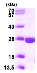 SDS-PAGE - PPCDC protein (ab101184)