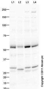 Western blot - Anti-KLC3 antibody (ab101188)