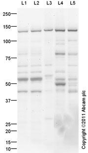 Western blot - Strumpellin antibody (ab101222)