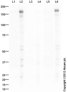 Western blot - Anti-ErbB 2 (phospho Y1248) antibody (ab101229)