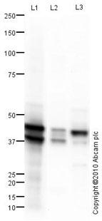 Western blot - Cytokeratin 19 antibody (ab101255)
