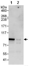 Immunoprecipitation - L3MBTL2 antibody (ab101272)