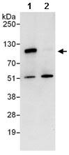 Immunoprecipitation - ICAM1 antibody (ab101275)