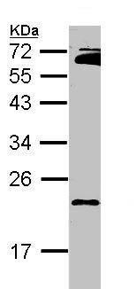Western blot - RAP2B antibody (ab101369)
