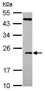 Western blot - TC10 antibody (ab101377)