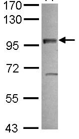 Western blot - VEZT antibody (ab101382)