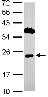 Western blot - ITM2C antibody (ab101389)