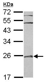 Western blot - RAB7L1 antibody (ab101394)