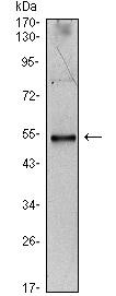 Western blot - Interleukin 34 antibody [1D12] (ab101443)
