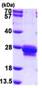 SDS-PAGE - SM22 alpha protein (ab101469)